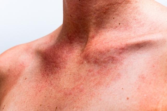 Como Evitar Alergias