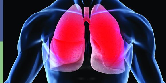 Doença Pulmonar Obstrutiva Crônica (DPOC) – O Que é, Sintomas e Como Tratar